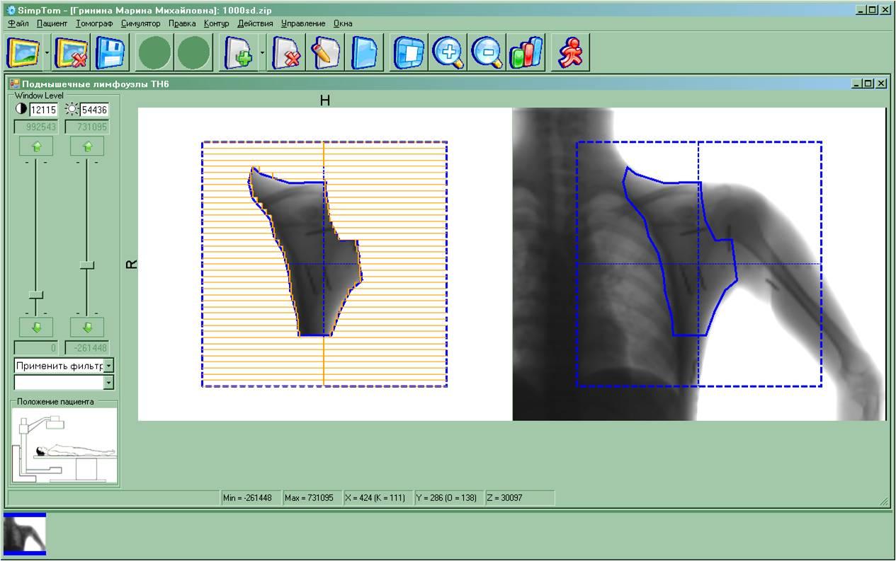Фигурное поле, выбранное для облучения врачом-радиологом на основе проекционного изображения тела пациента (справа) и расчет координат лепестков МЛК (слева)