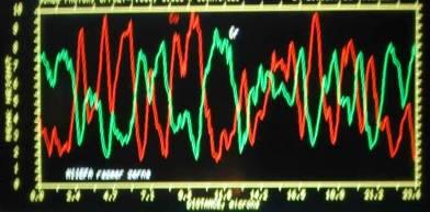 Анализ в линию (Cr, Cu), Увеличение в 5000 раз.